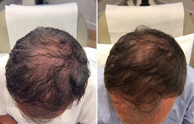 prp-hair-loss-inst.jpg