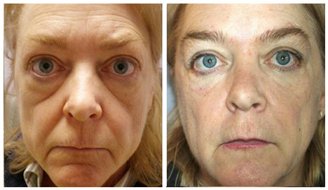 Before-After-PRP.jpg