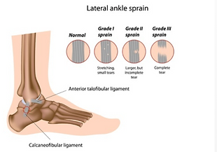 ankle students.png