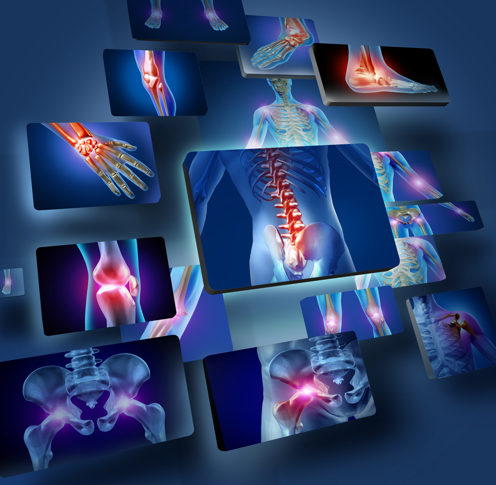 Joint Pain Physical Therapy