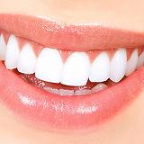 teeth-bleaching-results.jpg