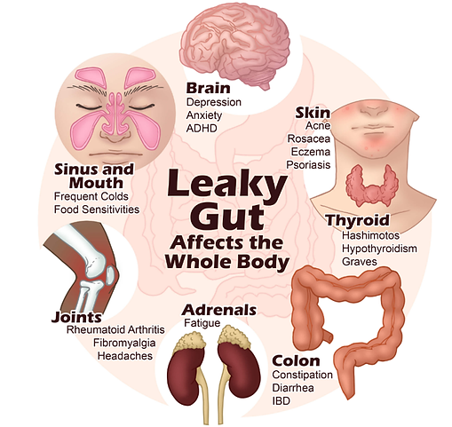 leaky gut.png