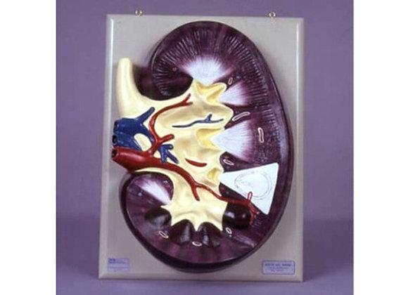 Corte del riñón