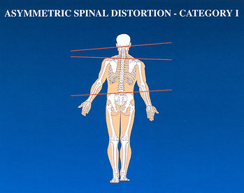 Spinal Distortion