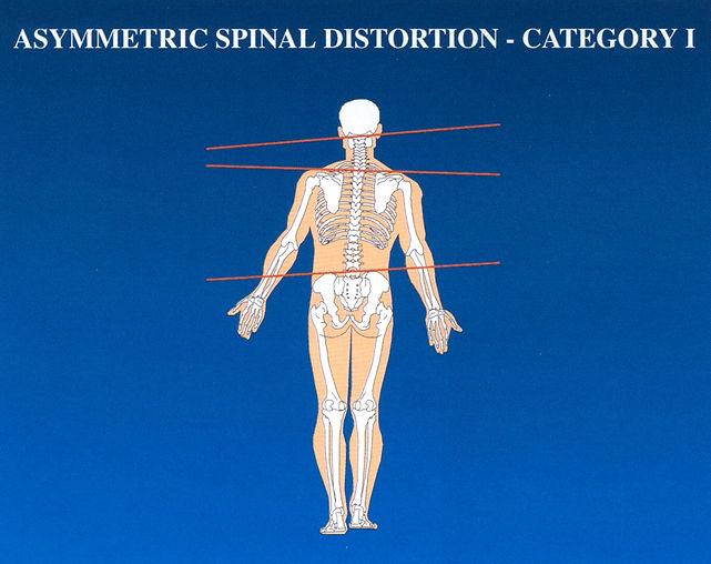 Asymmetric Spine.jpg