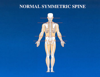 Normal Symmetric Spine