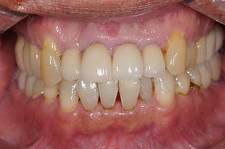 歯周病改善例1.jpg