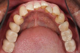歯周病改善例2.jpg