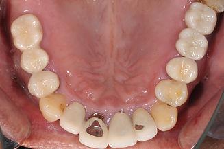 歯周病改善例3.jpg