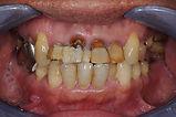 歯周病の例