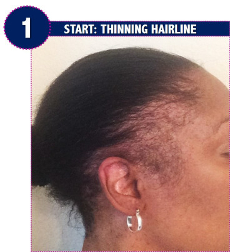 thinning edges, before, application, natrual, thinning hairline, hair loss, traction alopecia, amid beauty, wig making, diy, tutorial