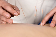 Acupuncture, Community Acupuncture, Fort Collins, Love Co Acu