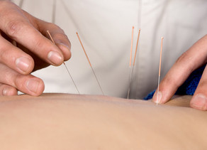 Acupuncture Insurance Billing
