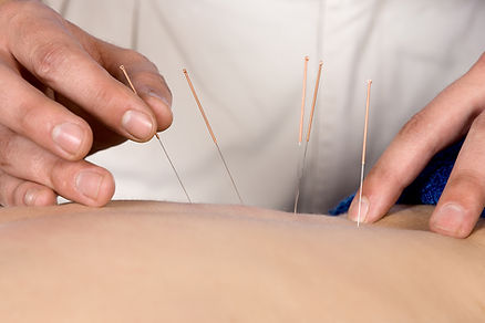 Acupuncture, Northcote, Doncaster