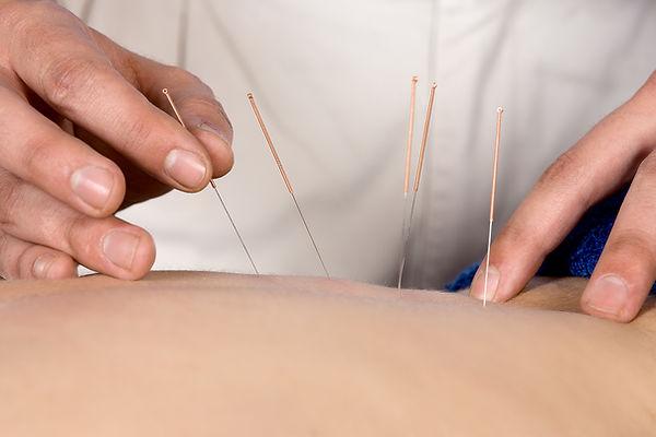 Akupunktur und Laserakupuntur