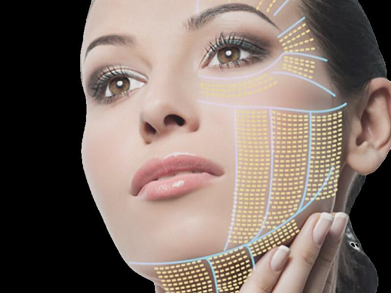 4D HIFU Face Tightning