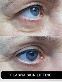 plasma eyes b&a 2.jpg