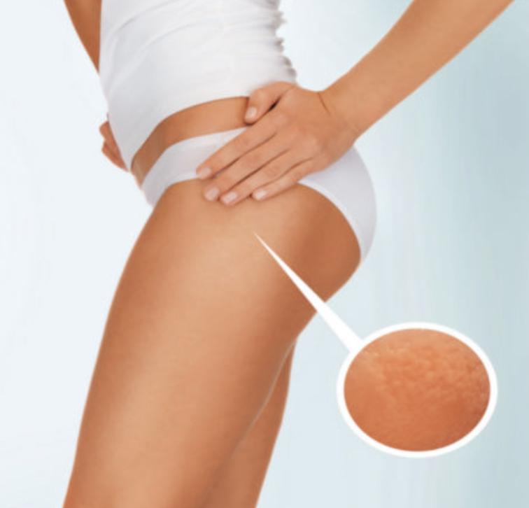 KumaShape III Legs/Buttocks