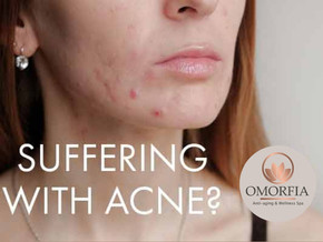 Suffering with Acne?