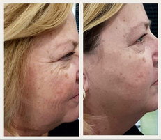 RF face results after 2 treatments