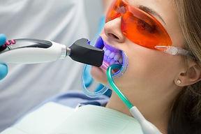 Tooth%20filling%20ultraviolet%20lamp_edi