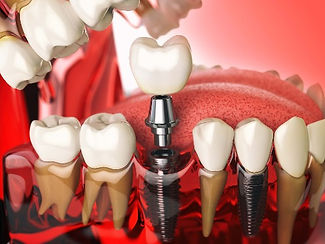 Tooth-implant-model-21_edited.jpg