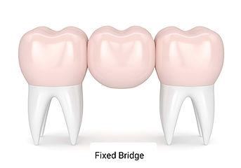 Fixed Dental Bridge