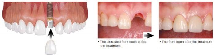 Implant-example_edited.jpg