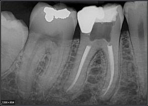 digital x-rays.JPG