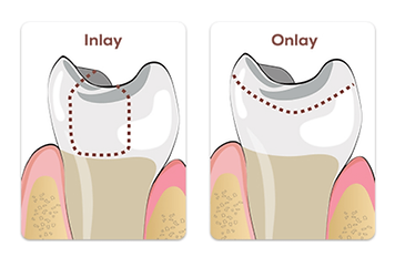 Dental inlay-onlay