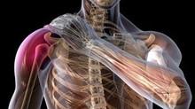Lesiones deportivas I: el dolor es una decisión del cerebro