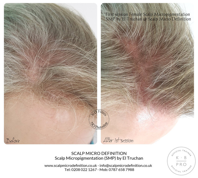 First session Female Scalp Micropigmentation SMP Hair Tattoo by El Truchan @ Scalp Micro Definition