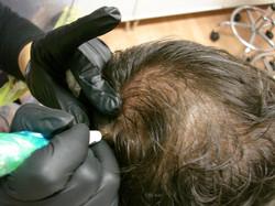 Hair Tattoo Densification by El Truchan