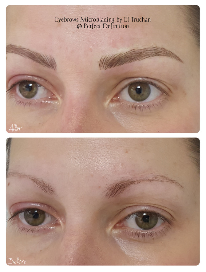 Eyebrows Thickness Restoration - Microblading by El Truchan @ Perfect Definition