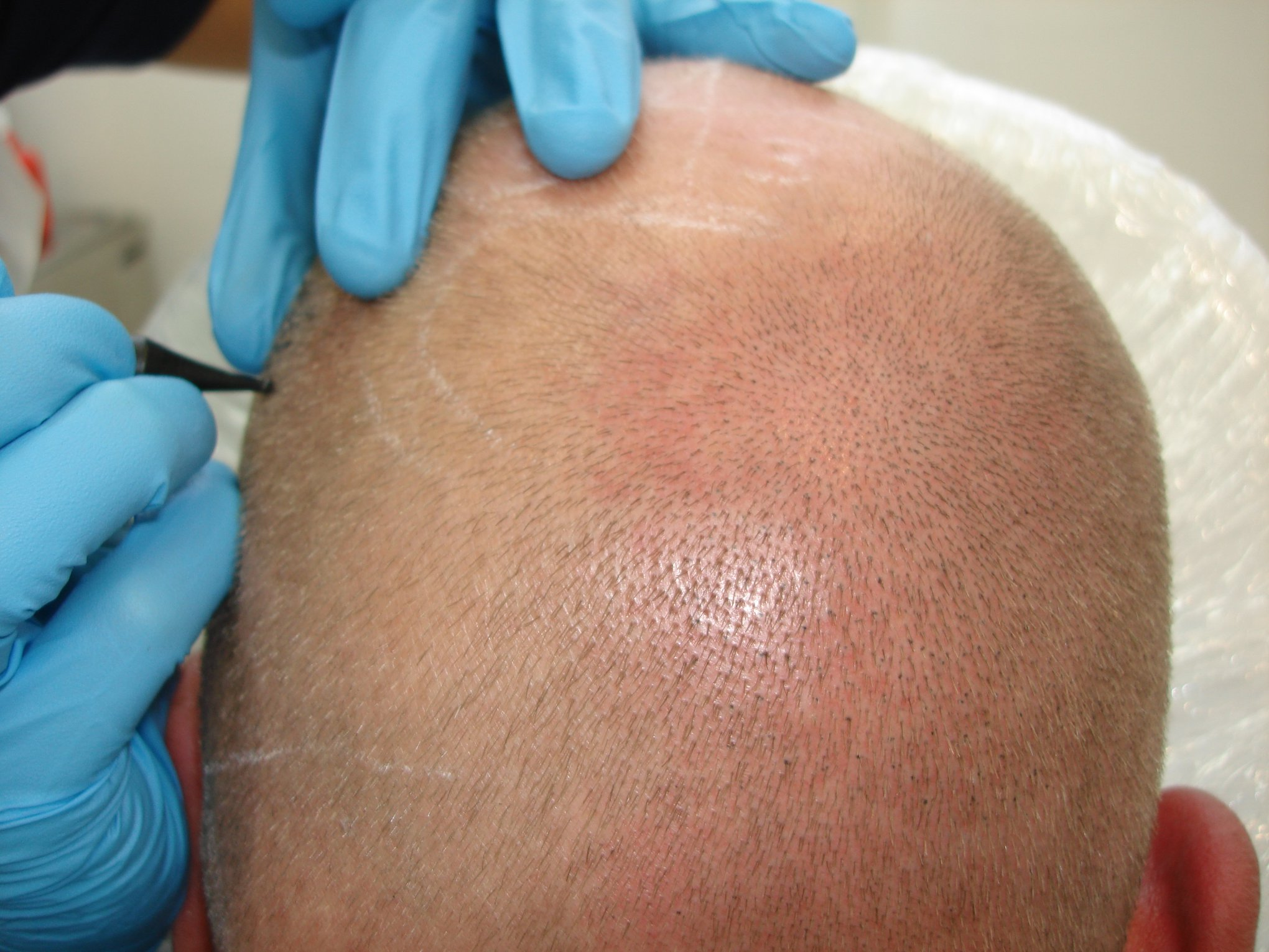 Scalp Micropigmentation SMP hair tattoo
