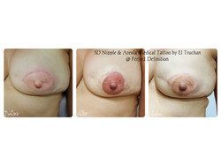 3D Nipple & Areola Reconstruction medical tattoo by El Truchan _ Perfect Definition11