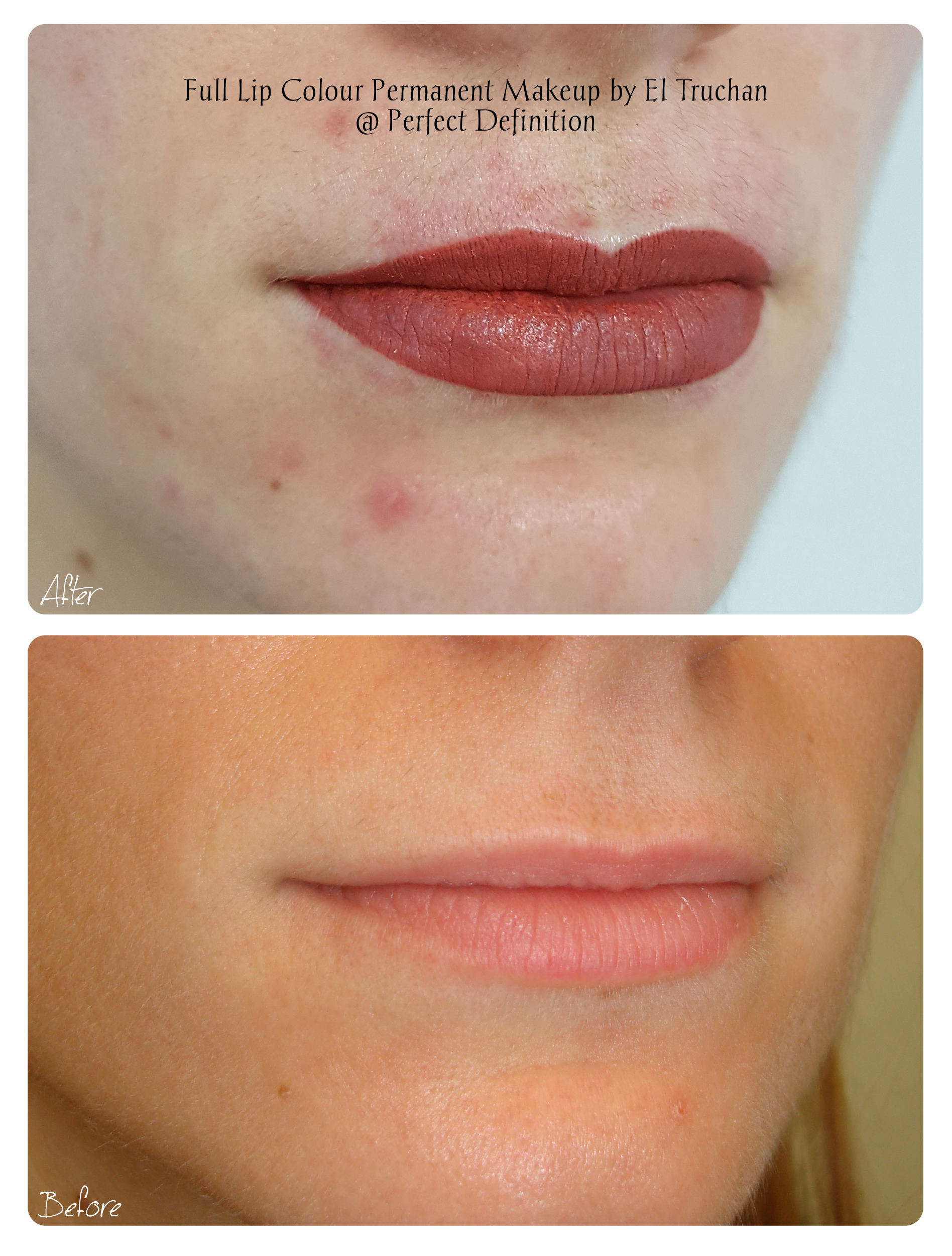 Full Lip Colour Permanent Makeup by El T