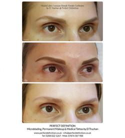 Healed after 1 session Blonde Powder Eye
