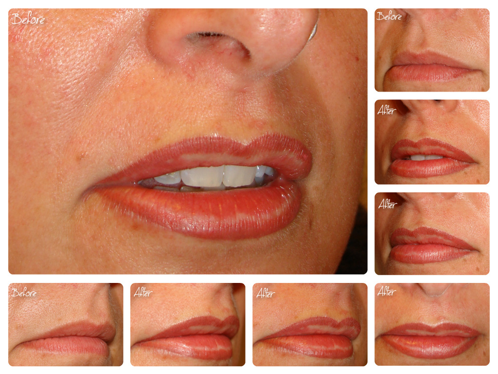 Lips Blush after the treatment