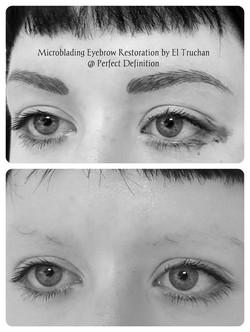 Eyebrow Reconstruction by El Truchan