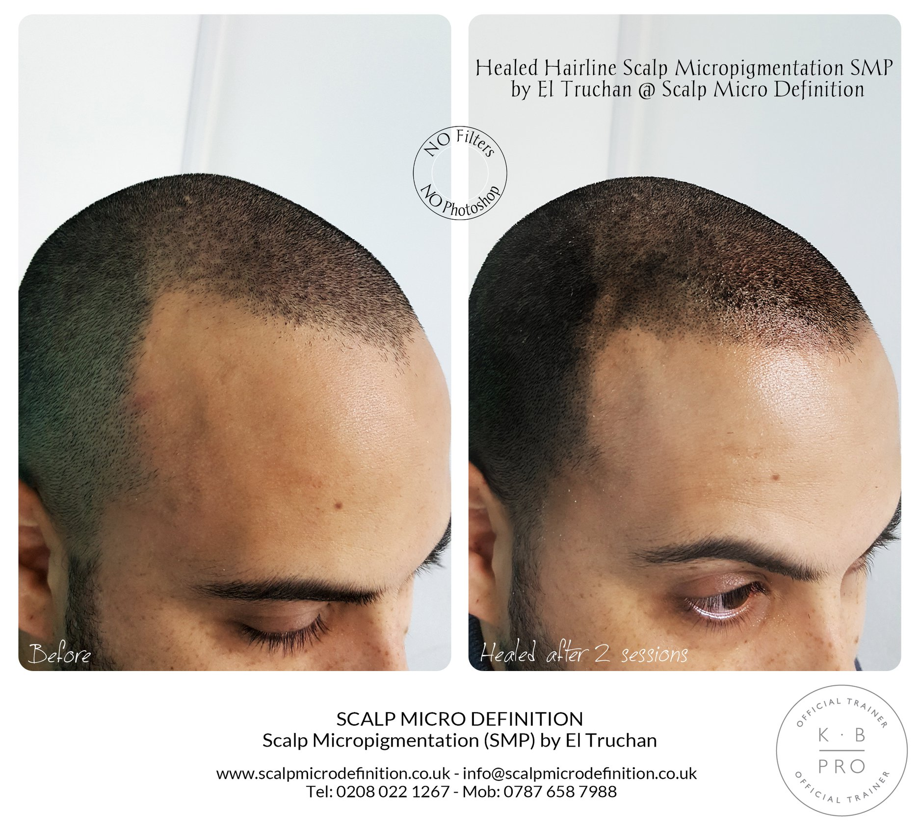 Healed Hairline Scalp Micropigmentation