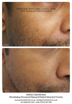 Healed Male Beauty Spots Cosmetic Tattoo