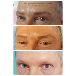 Male Healed after 1 session Eyebrows Mic