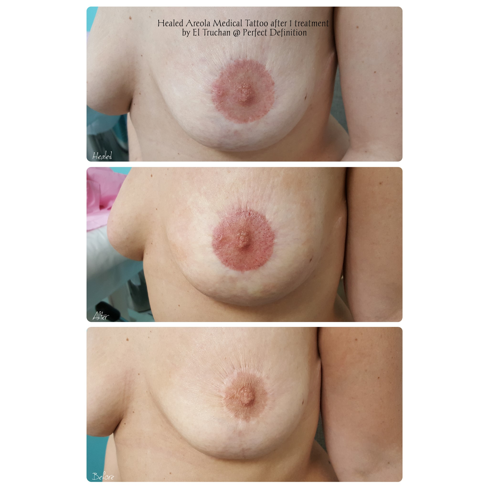 Healed after 1 treatment Nipple Areola M