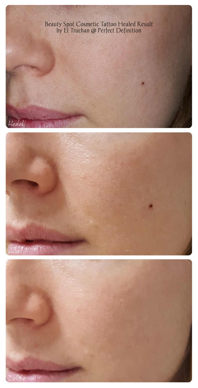 Beauty Spot Cosmetic Tattoo Healed Result by El Truchan @ Perfect Definition