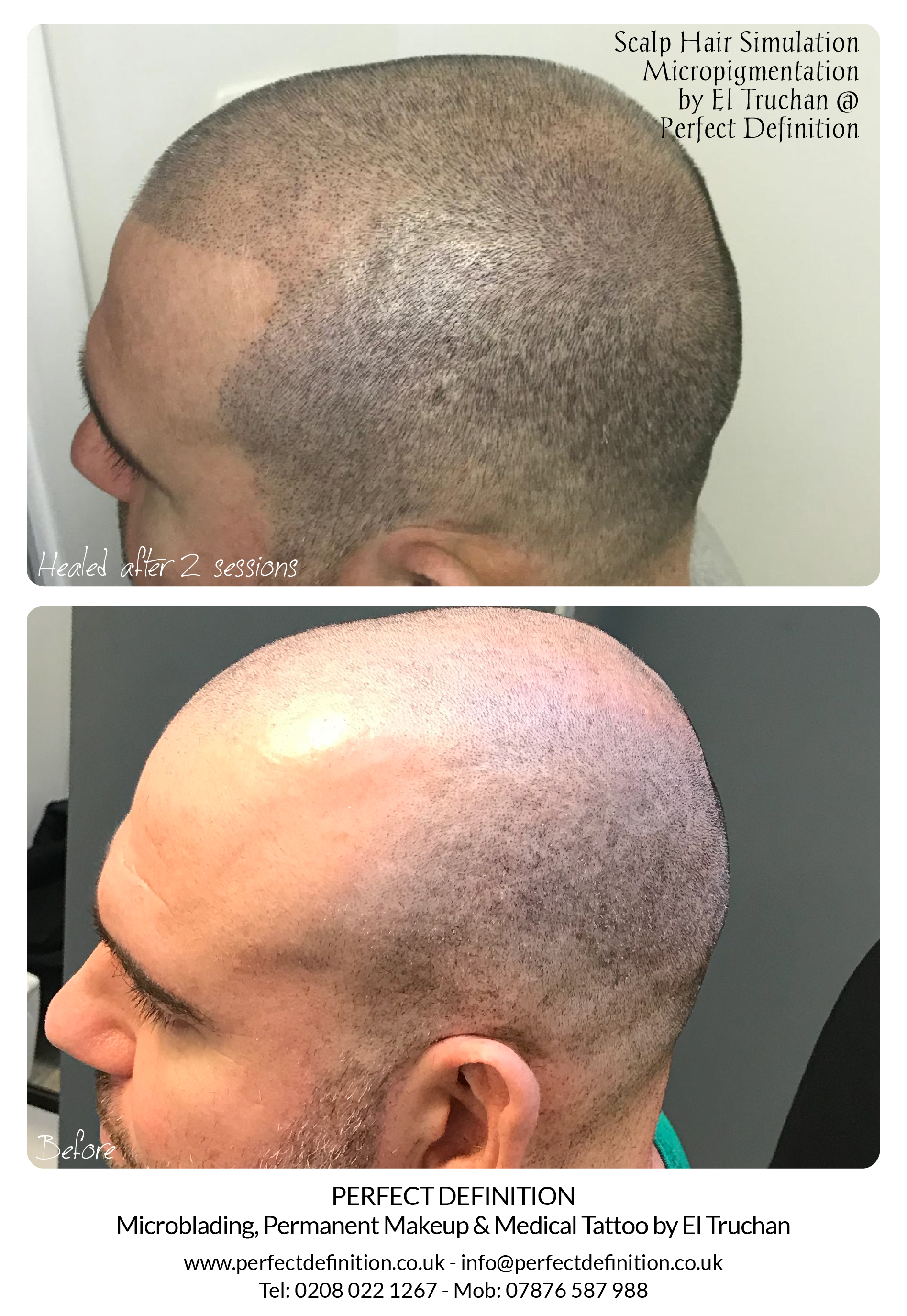 Scalp SMP Micropigmentation