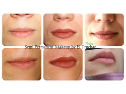 Lips Scar Tissue and Semi Permanent