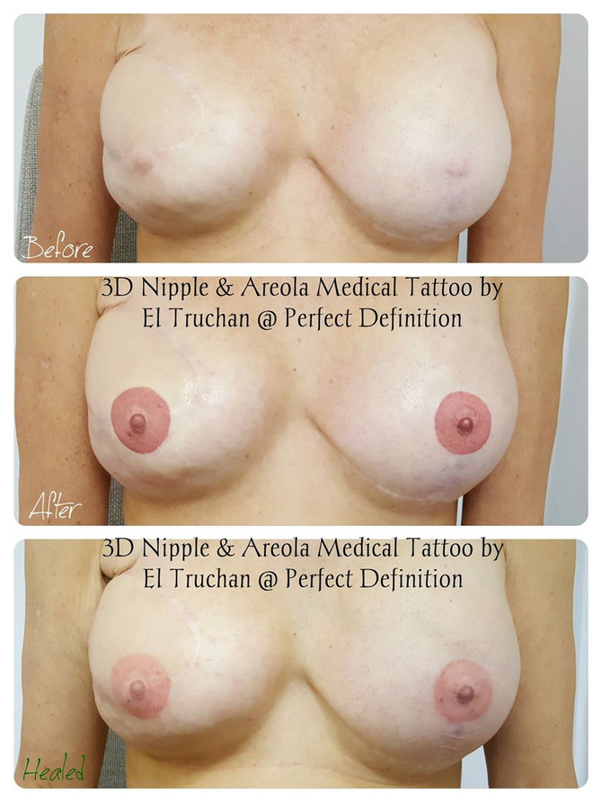 3D Nipple & Areola Medical tattoo post mastectomy, 2 breasts by El Truchan @ Perfect Definition
