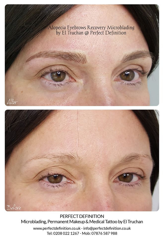 Alopecia Eyebrows Recovery Microblading by El Truchan @ Perfect Definition