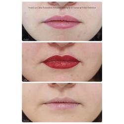 Healed Lip Colour Restoration Permanent